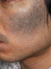頬の太田母斑(成人例)
